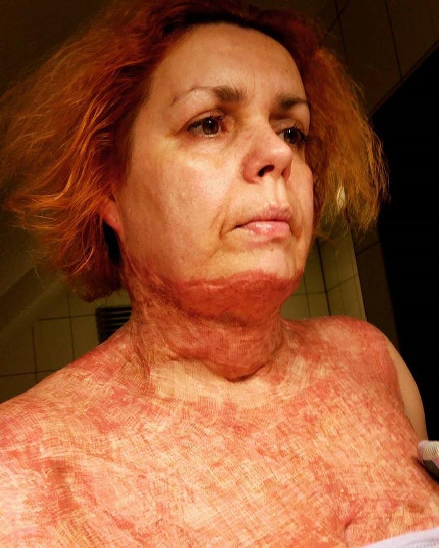 Jolanta Golianek pierwszy dzień po laseroterapii