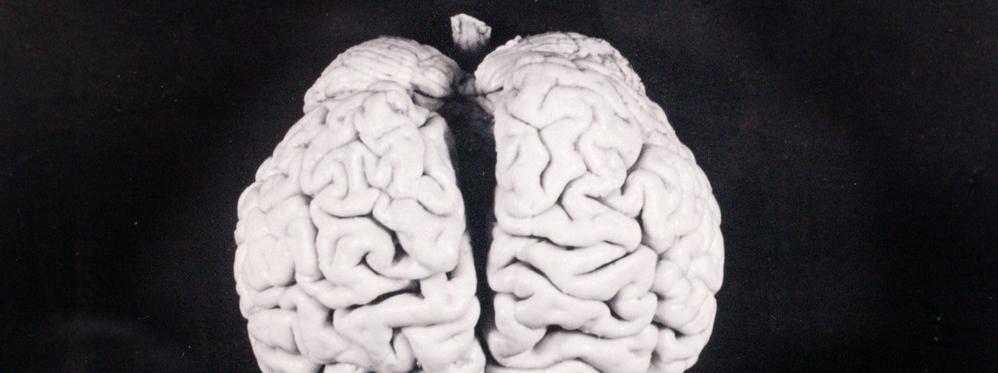 mózg Albert Einstein