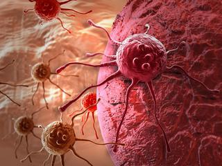 Przełom w leczeniu raka. Nadchodzi era personalizowanych terapii