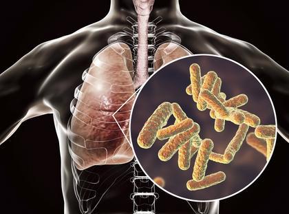 płuca bakterie