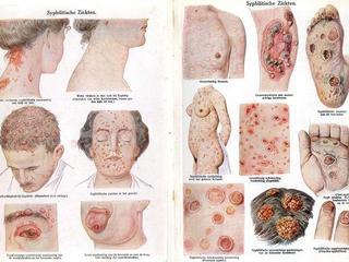 Choroby weneryczne atakują Polaków