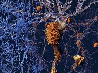 Jak wyleczyć chorobę Alzheimera