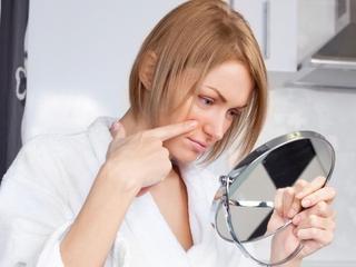 Jak zadbać o skórę z niedoskonałościami