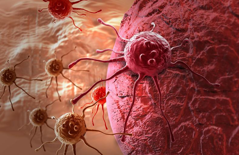 komórki nowotworowe, rak, nowotwór