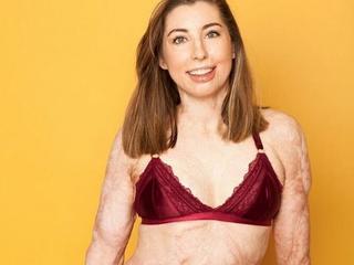 Wypadek oszpecił 96 procent jej ciała. Dziś pozuje w bieliźnie