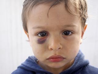Dzieci na torturach