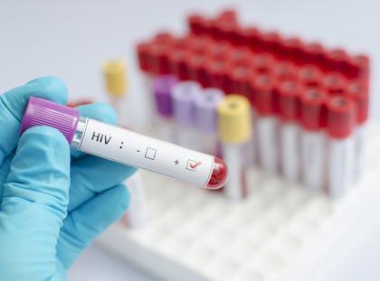 HIV AIDS zdrowie seks choroby