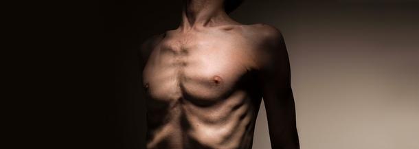 anoreksja, mężczyźni, choroby, zaburzenia, smutek, zaburzenia odżywiania, waga,