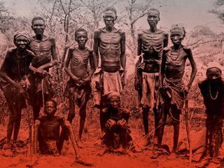Eksperymenty medyczne na ludziach i obozy koncentracyjne w Afryce