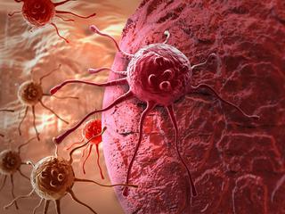 Ciężkie życie chorych na raka prostaty