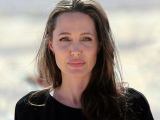 """""""Wyjątkowo nieprzyjemna dolegliwość"""". Co się stało z twarzą Angeliny Jolie?"""