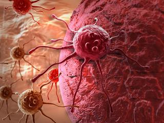 Sok z buraka lekiem na raka? Alternatywne metody leczenia mogą być zabójcze