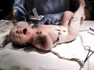 """""""Krzyczałam tak potwornie, że oczy wypełniły mi się krwią"""". Traumatyczne historie z porodówek"""
