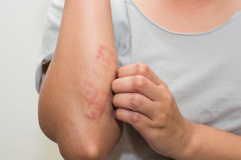 bőrbetegségek vörös foltok viszketés hámlás)