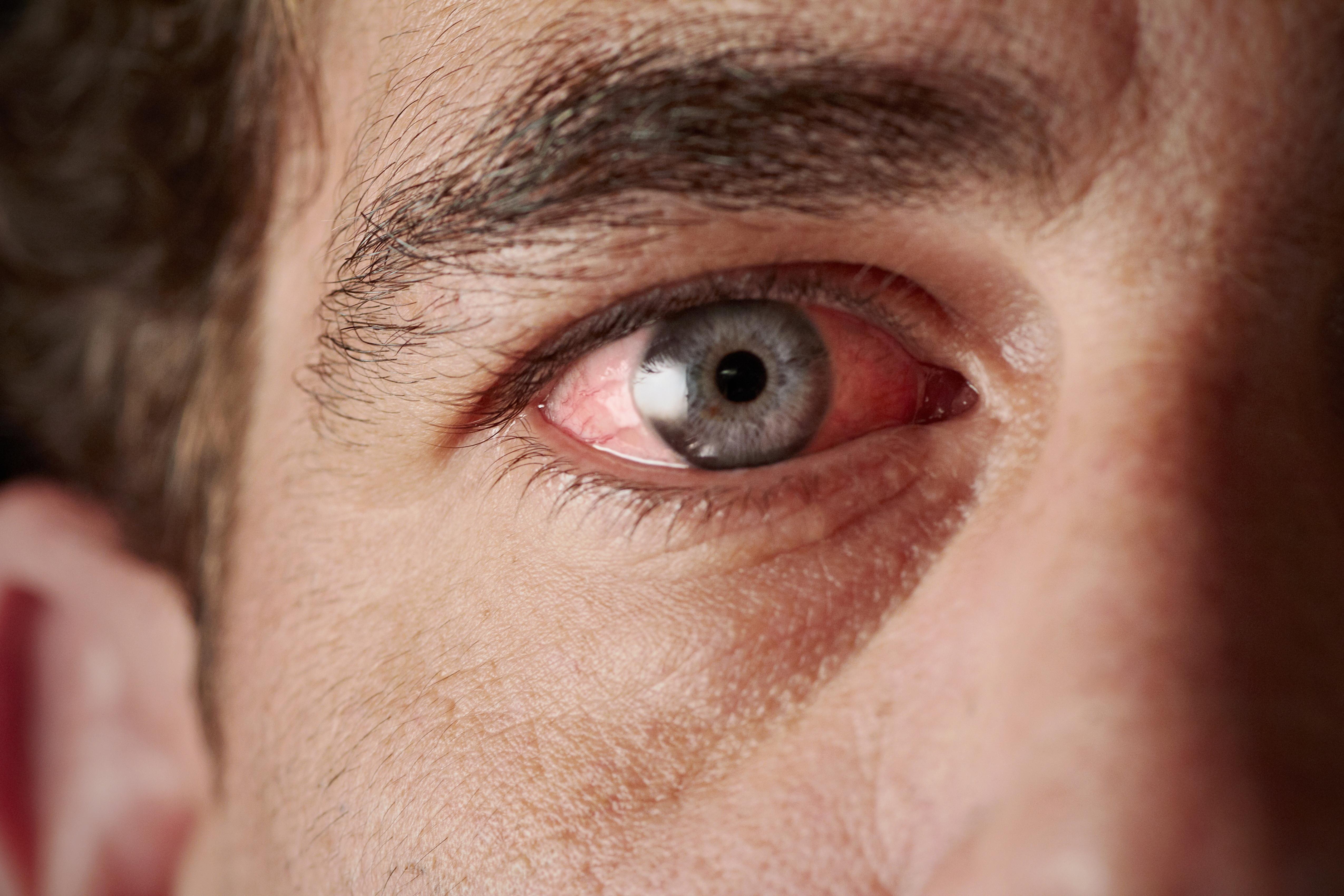 vörös folt a szem kezelésének fehérjén)