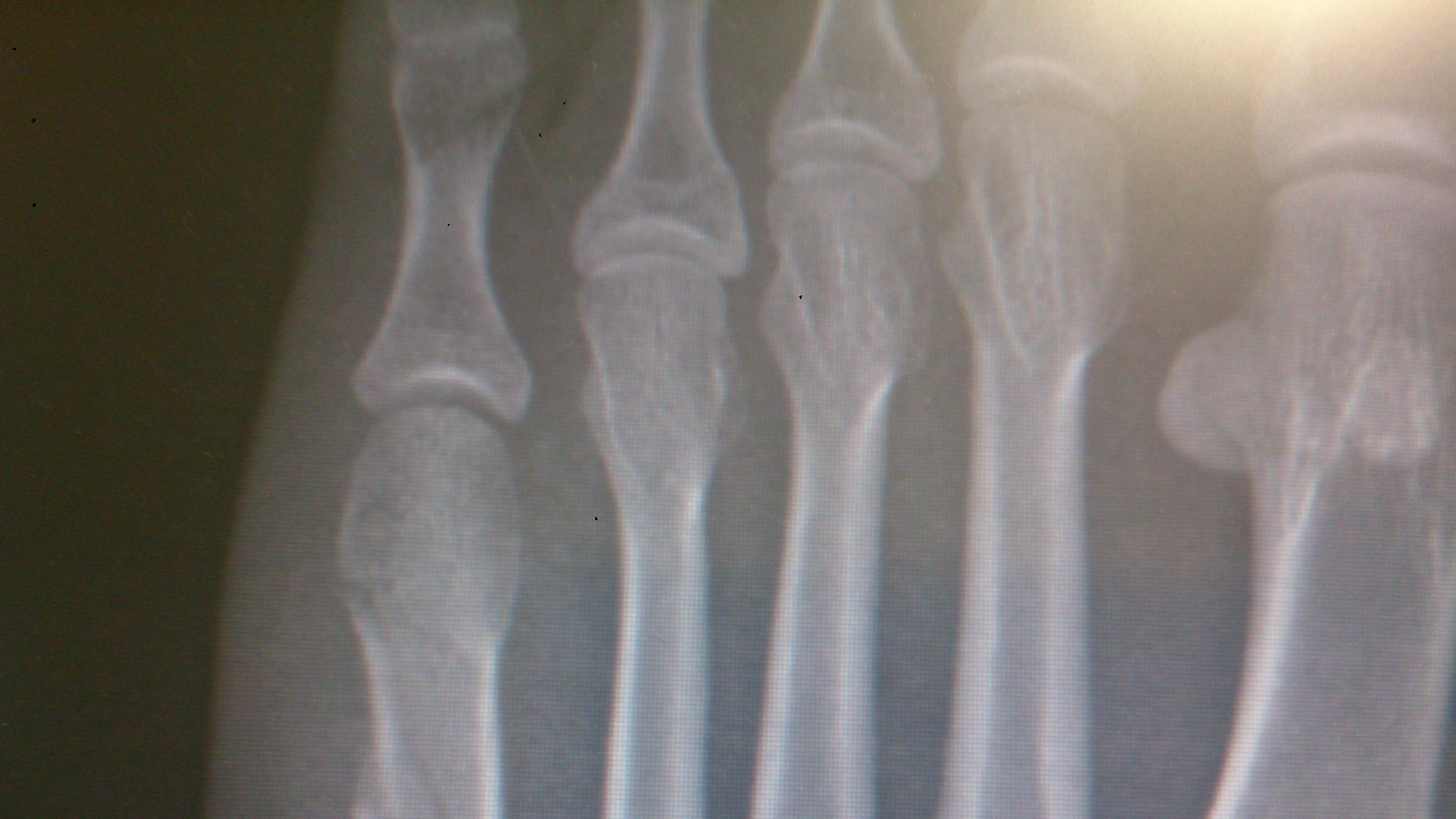 erekcja i promieniowanie rentgenowskie)