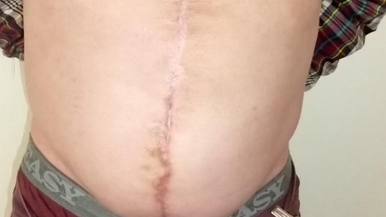 Plasztikai sebész szabadította meg a problémától / Fotó: Northfoto