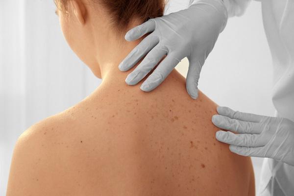 bőrrák képződik endometrium rák kb. 125