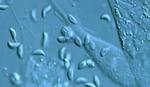 Naučnici otkrili parazite koji BUDE BES u čoveku i teraju na samoubistvo