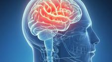 Nowy lek na alzheimera. Spowalnia chorobę o 80 procent
