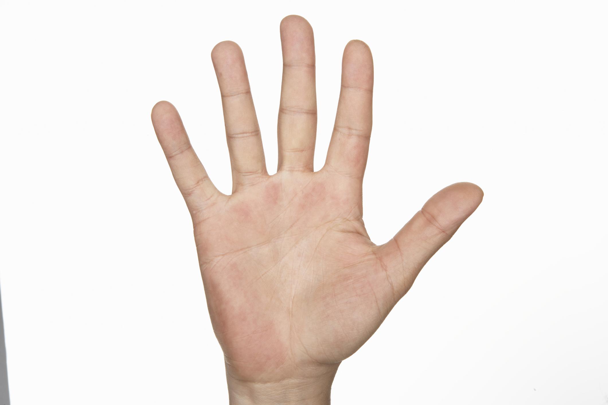 vörös folt jelent meg a kézen az ujjak között)