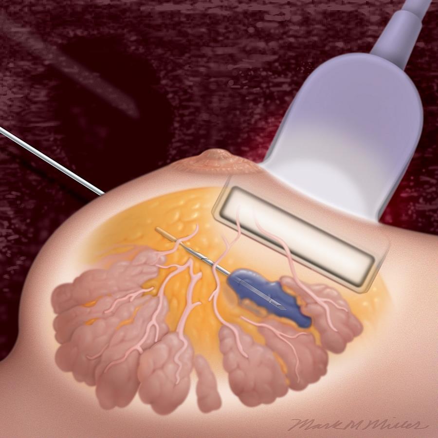 Biopsja mammotomiczna zalecenia po zabiegu   HelloZdrowie