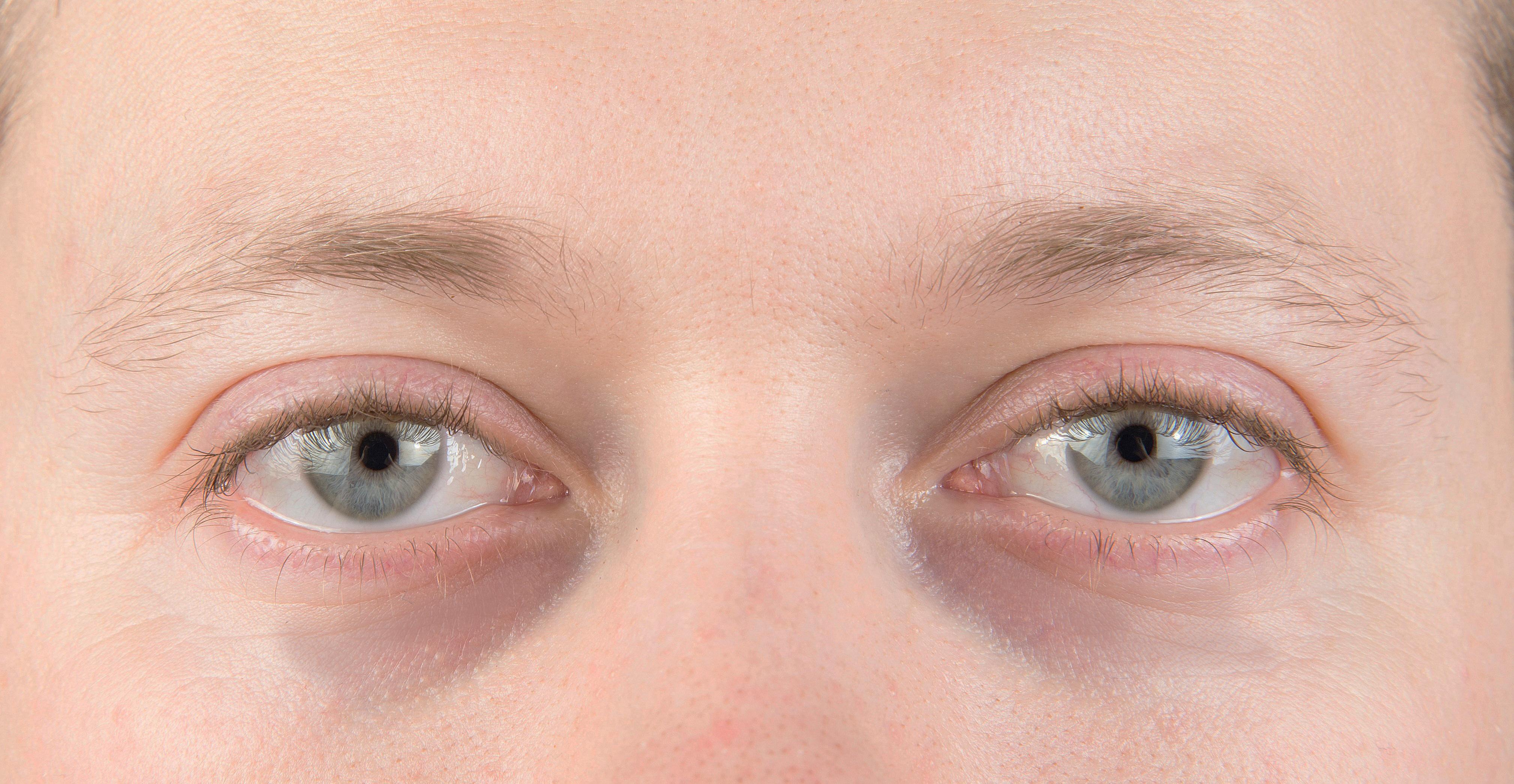furcsa szem fogyás
