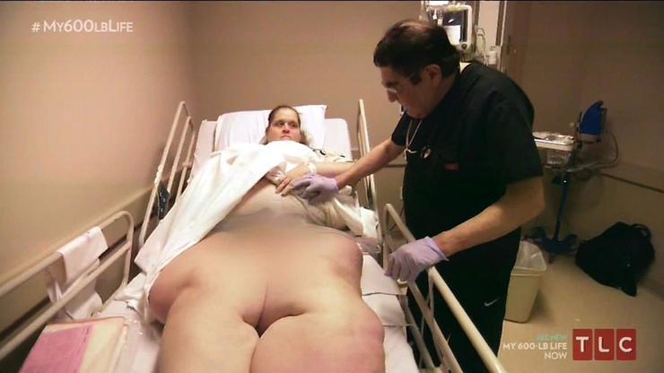 A két év alatt több műtéten is keresztül kellett esnie, hogy elérje kitűzött célt/Fotó: Profimedia-Reddot