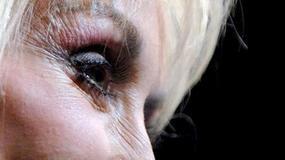 Dolly Parton kończy z operacjami plastycznymi