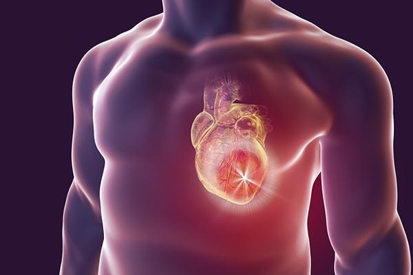 diéta infarktus után