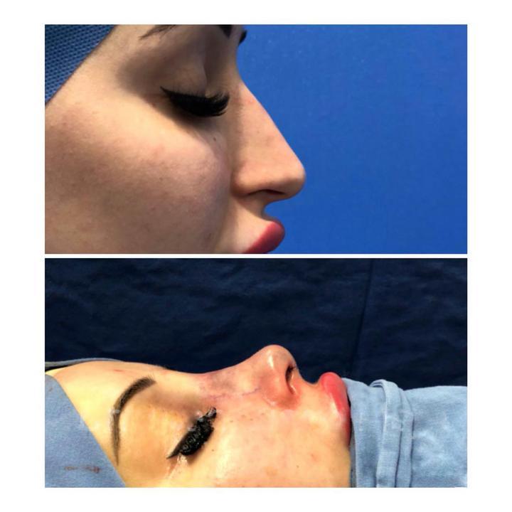A most 24 éves lány az orrát is megműttette /Fotó: Northfoto