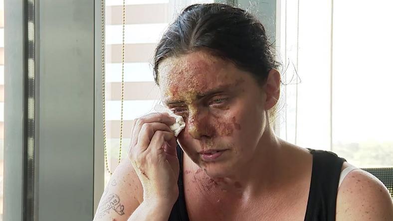 Carla Whitlock súlyosan megsérült az incidens során /Fotó: Northfoto