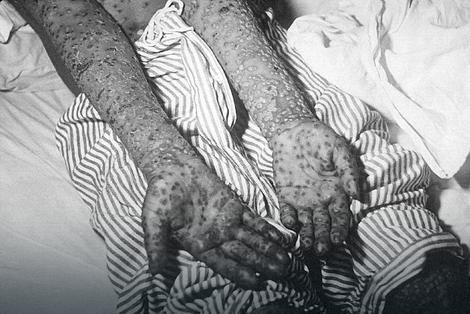 Boginje su nekada bile strašna bolest sa kojom ljudi nisu znali da se izbore