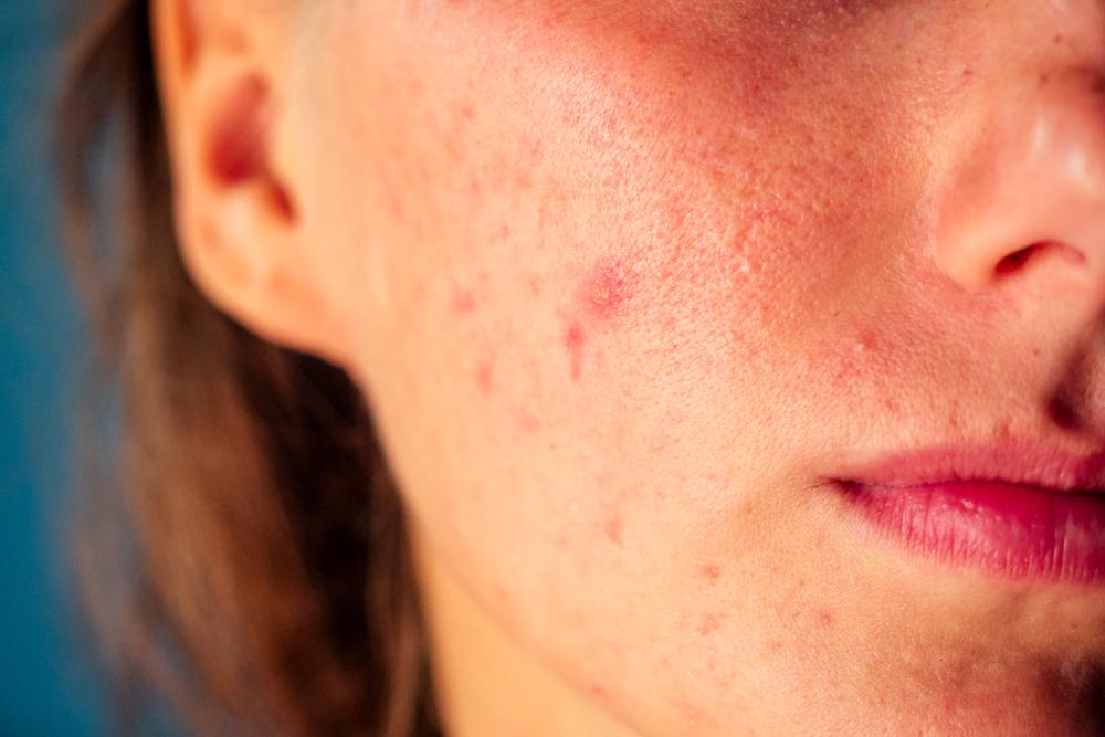 vörös foltok az arcon pattanások után. kezelés