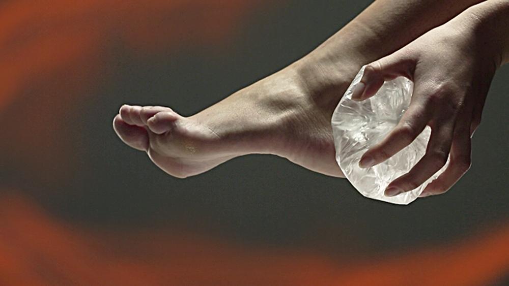 jég dörzsöli a lábakat a visszerekből