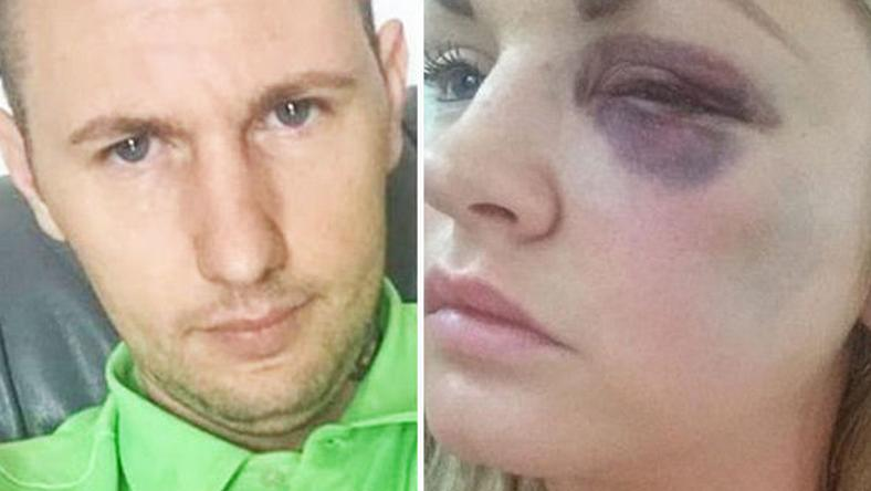 A férj ütött, a koszorúslány arccsontja eltört / Fotó: Machestes Evening News Syndication
