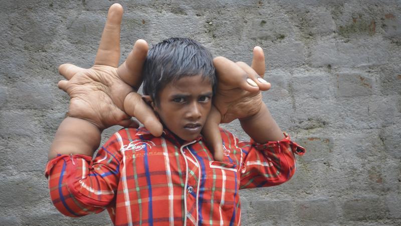 Garçon avec des mains géantes