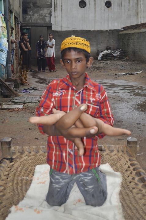 Chłopiec z gigantycznymi dłońmi
