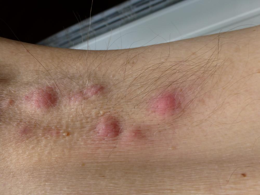 Ezek a krónikus verejtékmirigy-gyulladás tünetei