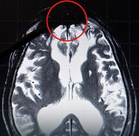 "Neurolog tvrdi da je crna mrlja na prednjem delu mozga ""izvor zla"""