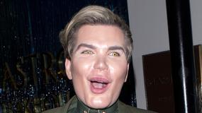 """Ma za sobą ponad 50 operacji plastycznych. Jak wygląda """"żywy Ken""""?"""
