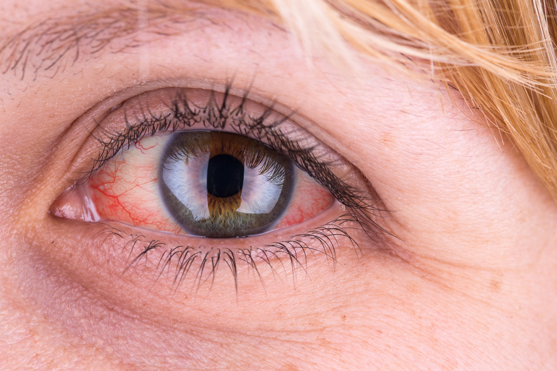 figyelem szemei