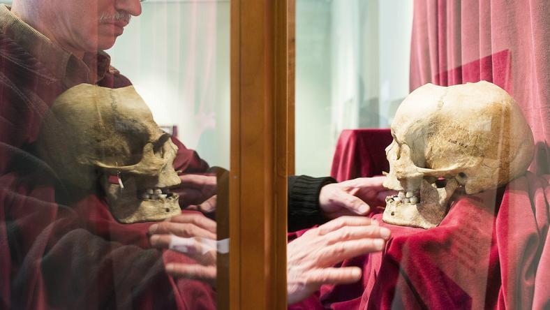 Császár Péter, a szolnoki múzeum restaurátora rendezgette el a vitrinben a koponyát. /Fotó: MTI-Balázs Attila