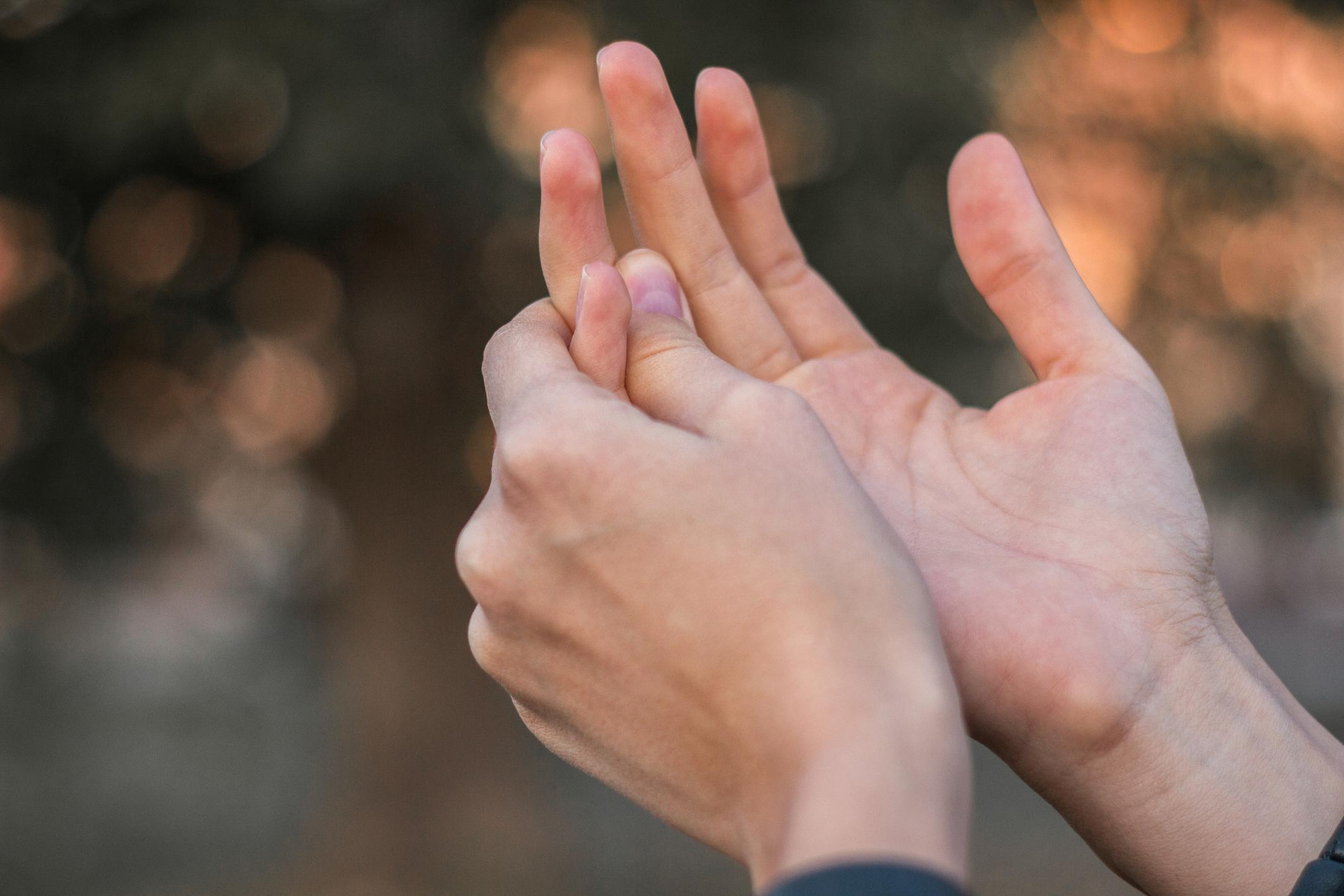 vörös foltok jelentek meg a bal kézen)