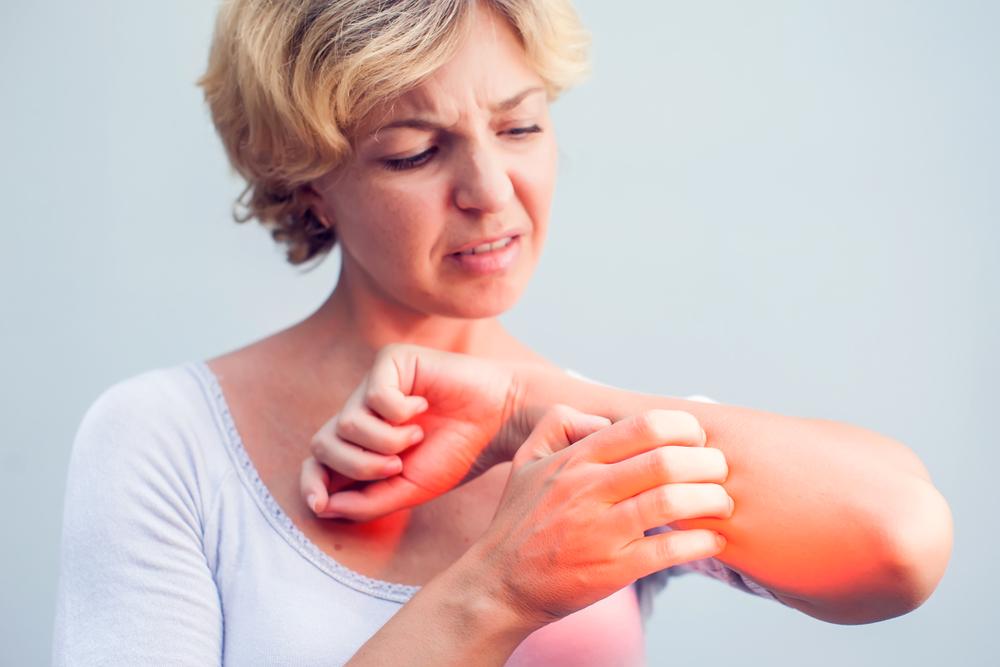 mi okozza a vörös foltok megjelenését az arcon vörös foltok az arcon betegség alatt