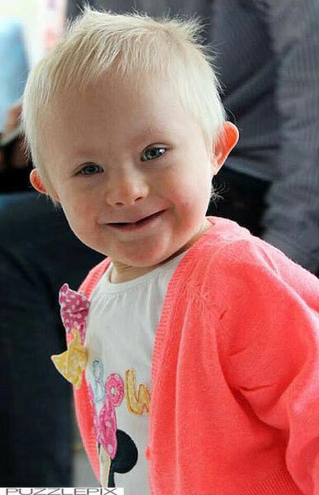 e9e3a88ffa Szívbemarkoló! Halálos beteg ez a tündéri hároméves kislány, mégsem ...