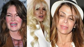 Przesadziły z botoksem?