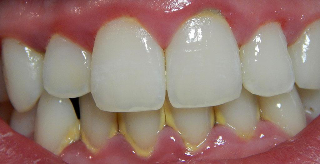 fogak és íny betegségei a dohányzástól)
