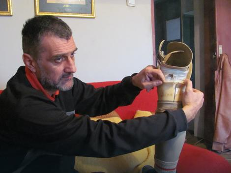 Ivan Mitić pokazuje protezu koju su mu polomili policajci