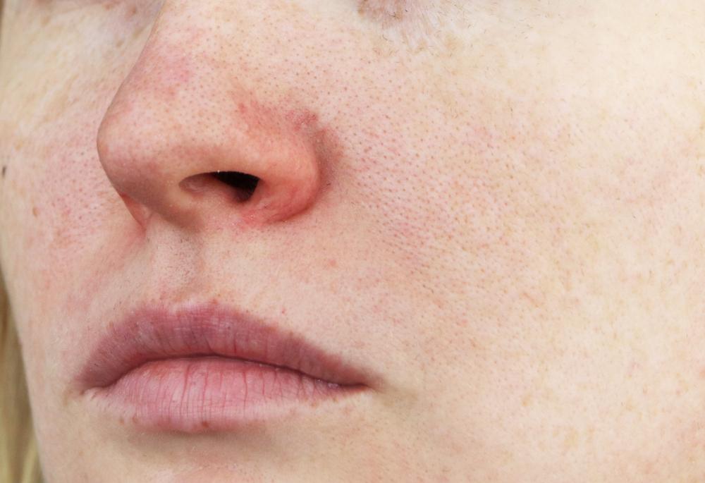 hogyan kell kezelni az orr visszérét